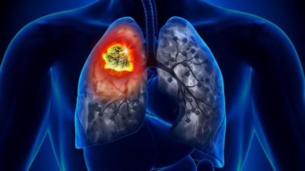 سرطان ریه,عامل مرگ زودرس افراد مبتلا به سرطان ریه
