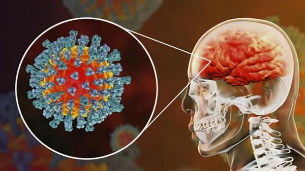 سکته مغزی در افراد کرونایی,مرگ در بیماران کرونایی دچار به سکته مغزی