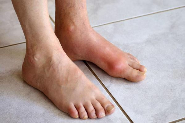 مارچوبه,مضرات مصرف مارچوبه برای بیماران مبتلا به نقرس