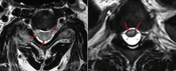 بروز یک بیماری عصبی نادر در بیماران کرونایی,ویروس کرونا
