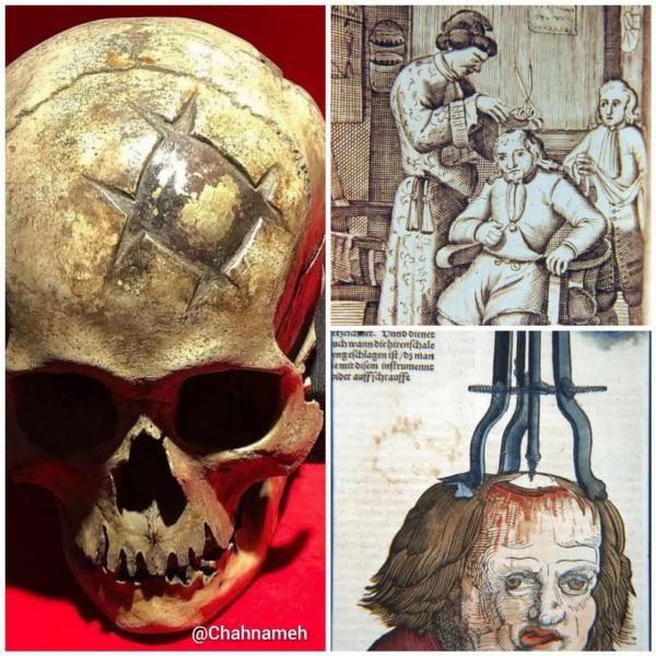 جراحی جمجمه,جراحی جمجمه در 1600 سال پیش