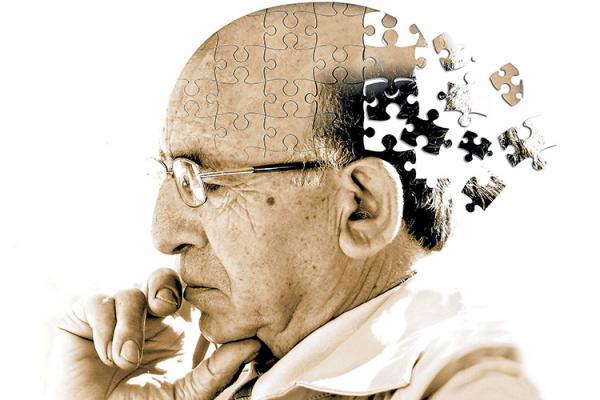 داروی جدید برای کاهش روند پیشرفت آلزایمر,آلزایمر
