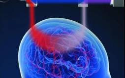 ارزیابی آسیبهای مغزی با کمک نور,مغز