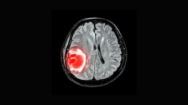 تومور مغزی,درمان تومور مغزی