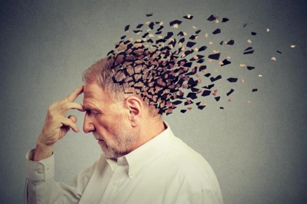 کشف روشی برای متوقفکردن آلزایمر,آلزایمر