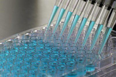 ابداع یک نشانگر زیستی برای تشخیص سرطان پانکراس,سرطان پانکراس