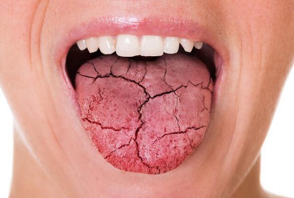 خشکی دهان,تاثیر میزان قند خون در ایجاد خشکی دهان
