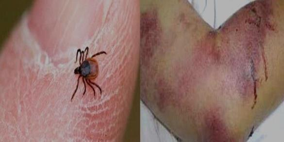 تب کریمه کنگو, بیماریهای زئونوز