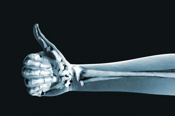 اشعه ایکس,تصویربرداری