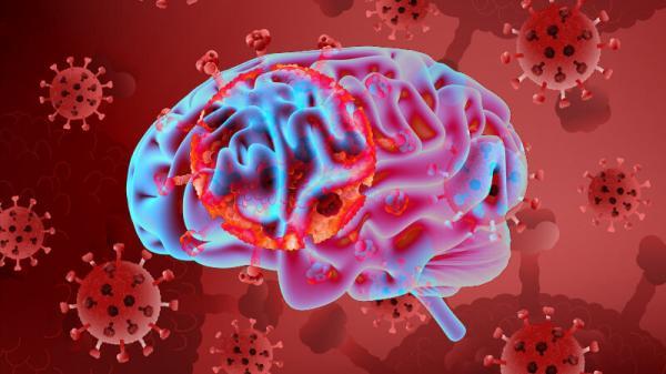 افزایش خطر زوال عقل در برخی مبتلایان به کرونا,زوال عقل