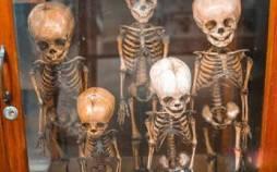فروش استخوان انسان, تجارت وحشتناک جوان آمریکایی