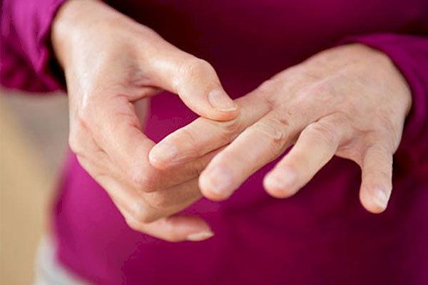 بیماری آرتروز روماتوئید,اخبار پزشکی,خبرهای پزشکی,تازه های پزشکی
