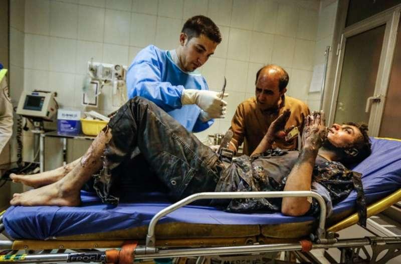 سوختگی در اثر انفجار ترقه,اخبار حوادث,خبرهای حوادث,حوادث امروز