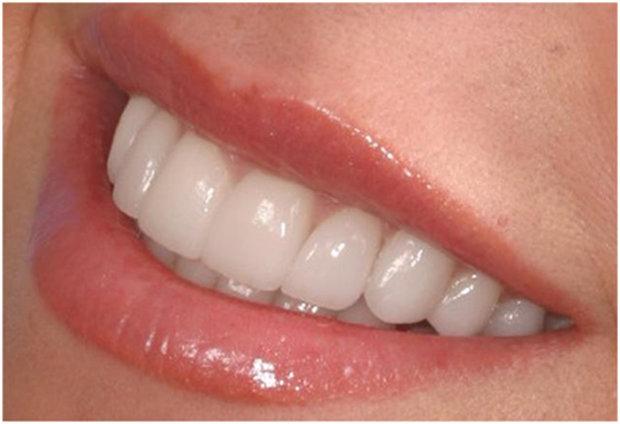 سفیدی دندان,اخبار علمی,خبرهای علمی,اختراعات و پژوهش
