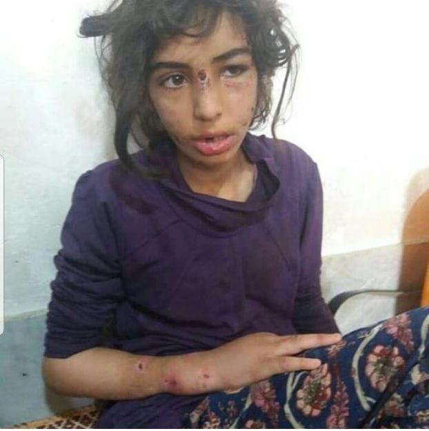کودک آزاری در ماهشهر,اخبار حوادث,خبرهای حوادث,جرم و جنایت