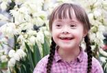 کودکان مبتلا به سندروم داون,اخبار پزشکی,خبرهای پزشکی,بهداشت