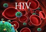 ویروس HIV,اخبار پزشکی,خبرهای پزشکی,تازه های پزشکی