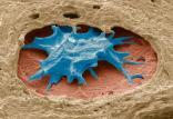 آپتاحسگر سرطان تخمدان,اخبار علمی,خبرهای علمی,پژوهش