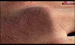 ویدئو/پیشگیری و درمان خشکی پوست