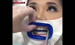 ویدئو/بلیچینگ دندان، یکی از راههای سفید کردن دندان