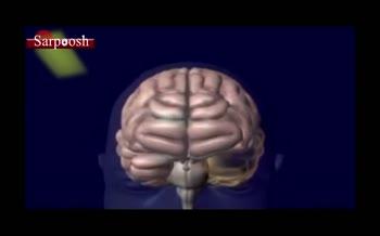 ویدئو/بیماری پارکینسون(لرزش) و چگونگی بروز این بیماری شایع