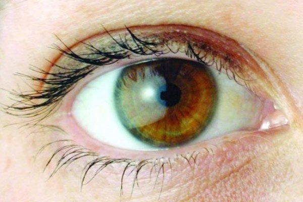 چشم,اخبار پزشکی,خبرهای پزشکی,تازه های پزشکی