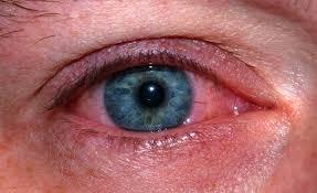 علل بروز انحراف چشم در کودکان,اخبار پزشکی,خبرهای پزشکی,مشاوره پزشکی