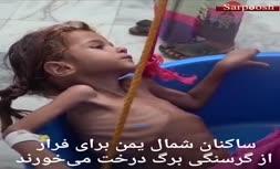 فیلم/ خطر مرگ در کمین ۱۱ میلیون کودک یمنی به سبب نبود غذا