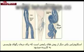 ویدئو/اسکلروتراپی چیست و عملکرد آن در درمان واریس چگونه است؟