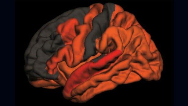 ارتباط کیفیت پایین خواب با ابتلا به آلزایمر,اخبار پزشکی,خبرهای پزشکی,تازه های پزشکی