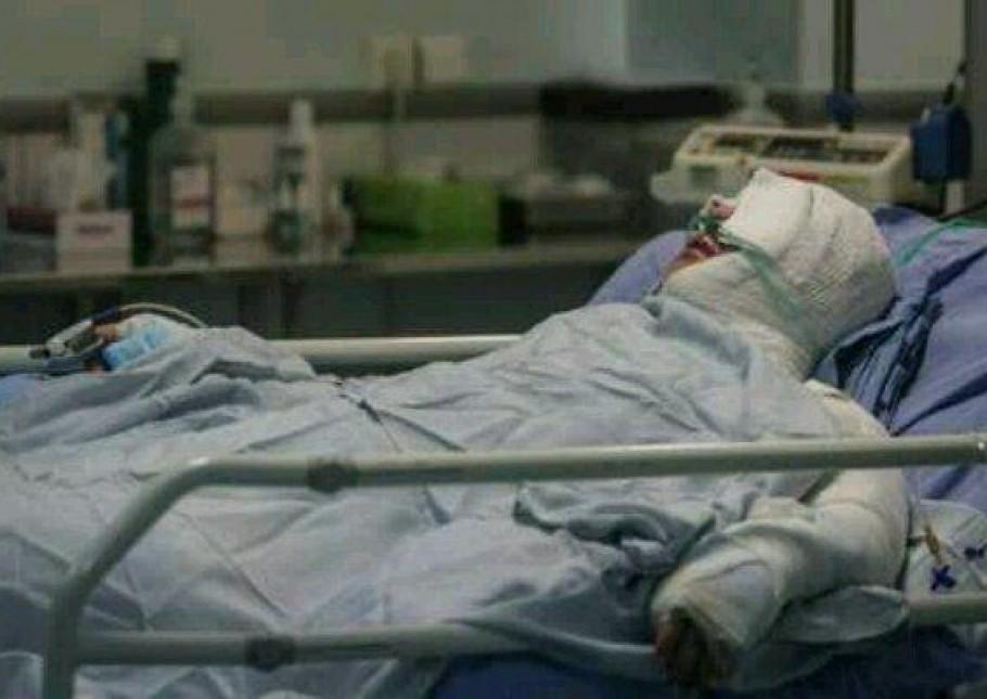سوختگی زنان در ایران,اخبار اجتماعی,خبرهای اجتماعی,خانواده و جوانان