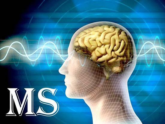 درمان ام اس با ورزش,اخبار پزشکی,خبرهای پزشکی,مشاوره پزشکی