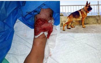 حمله سگ به دختربچه,اخبار اجتماعی,خبرهای اجتماعی,جامعه