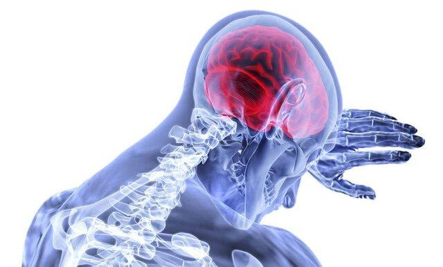 مشکلات حافظه در پیری,اخبار پزشکی,خبرهای پزشکی,تازه های پزشکی