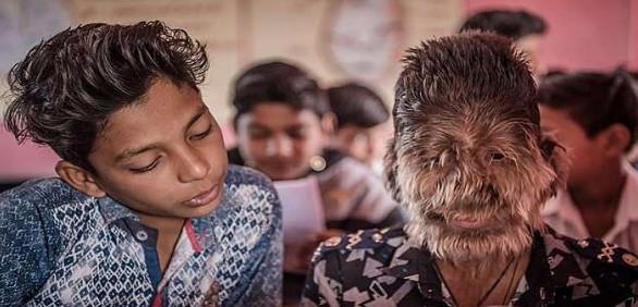 پسربچه گرگنما در هند,اخبار جالب,خبرهای جالب,خواندنی ها و دیدنی ها