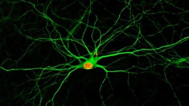 تبدیل سلولها به نورون برای ترمیم آسیبهای مغزی,اخبار پزشکی,خبرهای پزشکی,تازه های پزشکی