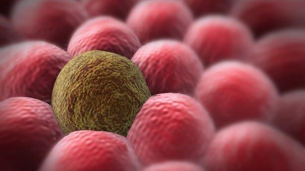 درمان بیماری سرطان,اخبار پزشکی,خبرهای پزشکی,تازه های پزشکی