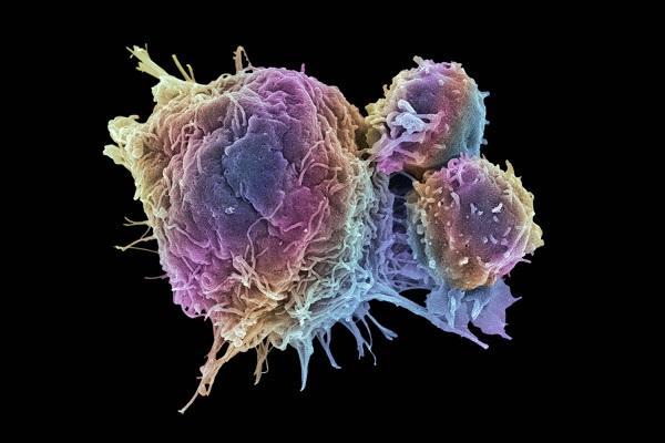 سطح اکسیژن و سلول سرطانی,اخبار پزشکی,خبرهای پزشکی,تازه های پزشکی