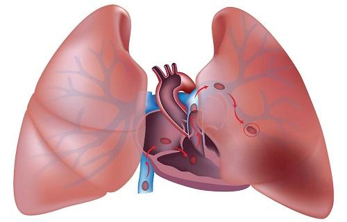 آمبولی ریه,اخبار پزشکی,خبرهای پزشکی,مشاوره پزشکی