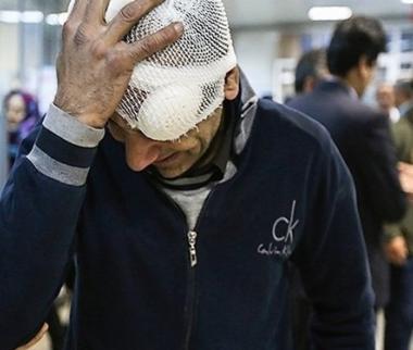 مصدومان چهارشنبه سوری,اخبار حوادث,خبرهای حوادث,حوادث امروز