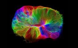 رشد مغز,اخبار پزشکی,خبرهای پزشکی,تازه های پزشکی