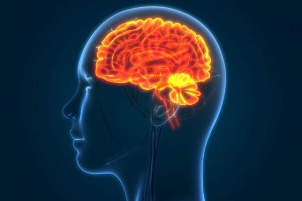 تورم مغز,اخبار پزشکی,خبرهای پزشکی,تازه های پزشکی