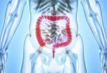 سرطان روده بزرگ,اخبار پزشکی,خبرهای پزشکی,تازه های پزشکی