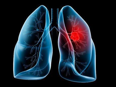 سرطان ریه,اخبار پزشکی,خبرهای پزشکی,مشاوره پزشکی