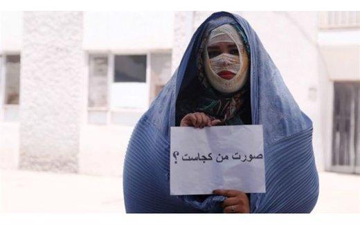 قربانیان اسیدپاشی در ایران,اخبار اجتماعی,خبرهای اجتماعی,آسیب های اجتماعی
