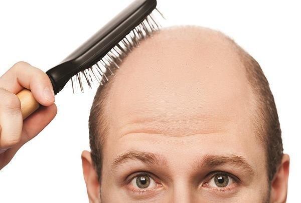 ریزش مو,اخبار پزشکی,خبرهای پزشکی,تازه های پزشکی