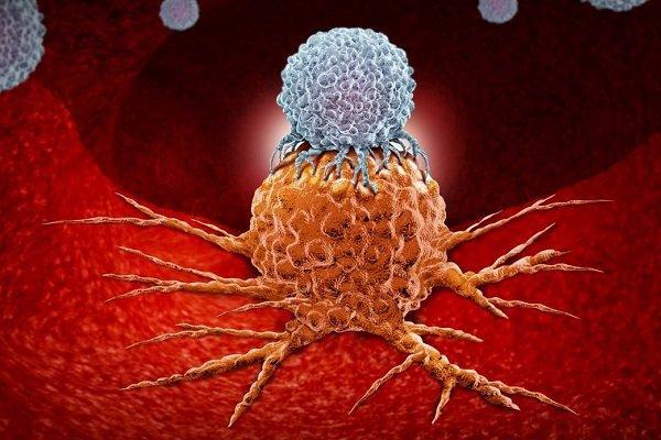 سلول های سرطانی,اخبار پزشکی,خبرهای پزشکی,تازه های پزشکی