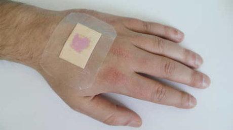 نانو پانسمانهای درمان زخمهای دیابتی و سوختگی,اخبار پزشکی,خبرهای پزشکی,تازه های پزشکی