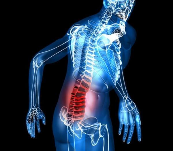 درد سیاتیک,اخبار پزشکی,خبرهای پزشکی,تازه های پزشکی
