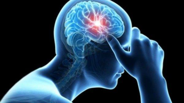 سکته مغزی,اخبار پزشکی,خبرهای پزشکی,تازه های پزشکی